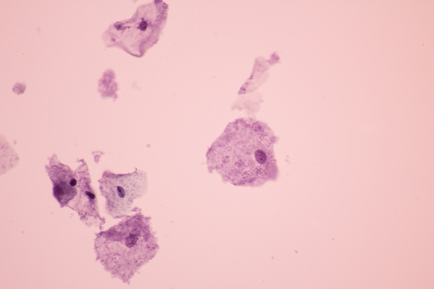 bacteriele vaginose